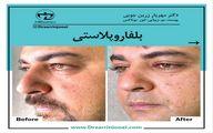 رفع پف چشم و افتادگی پلک با روش بلفاروپلاستی