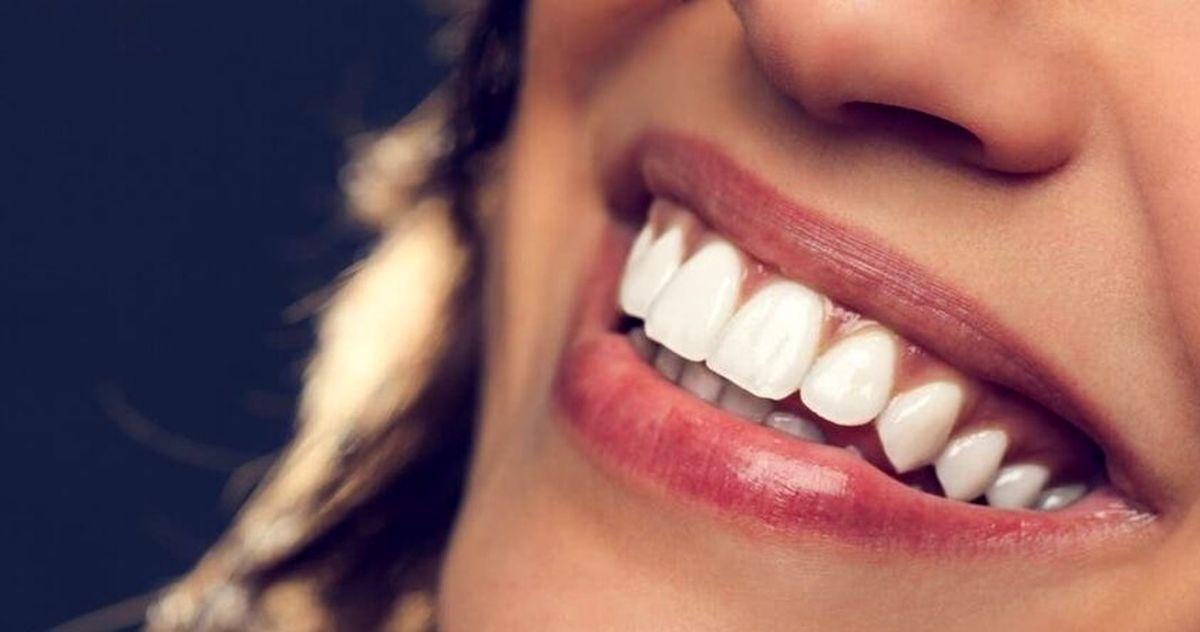 ارزان ترین روش ها برای سفید کردن دندانها