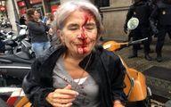 تصاویری تکان دهنده از درگیری پلیس ضدشورش و مردم در روز همهپرسی استقلال کاتالونیا