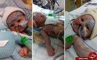 دختری که با قلب نصفه به دنیا آمد و باعث حیرت پزشکان شد+تصاویر
