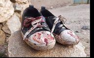 عکس 16+ از حمله به دبیرستان دخترانه سیدالشهدا  + جزئیات دردناک