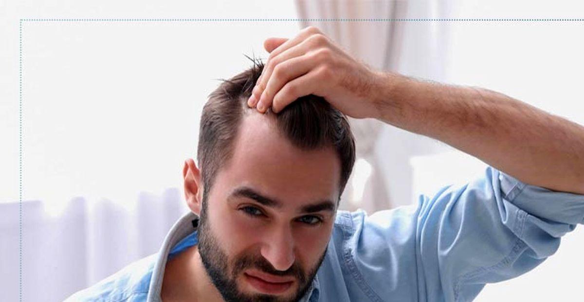 علت ریزش مو در مردان چیست؟ + نحوه درمان