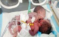 درخواست کمک مسؤولان بهداشتی یمن برای نجات جان دوقلوی بههم چسبیده