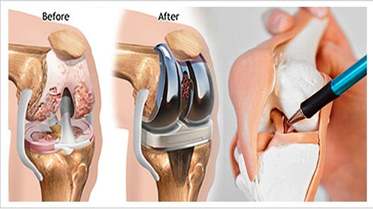 9 سوال رایج در مورد جراحی و توانبخشی تعویض مفصل زانو که ممکن است برای شما پیش بیاید