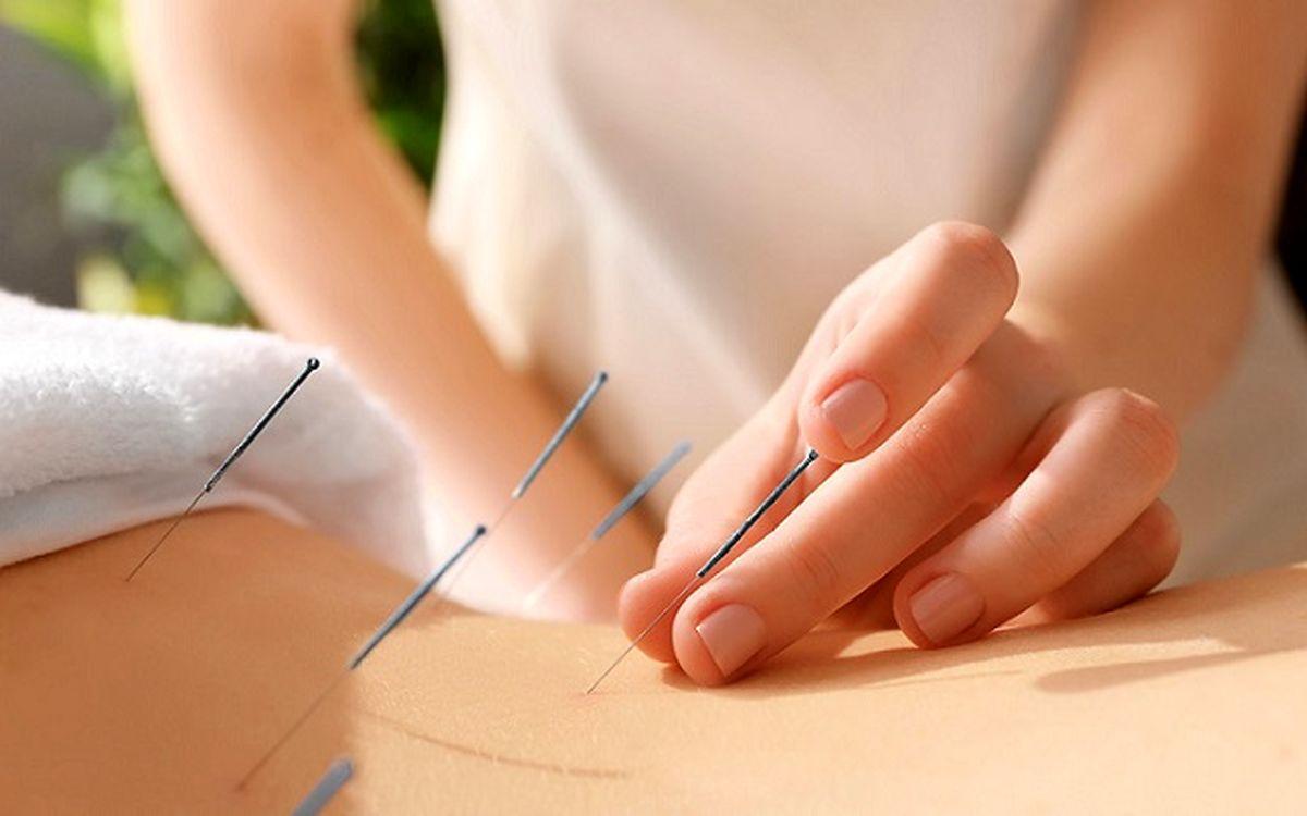 طب سوزنی یک راهکار درمانی اثربخش برای انواع بیماریها