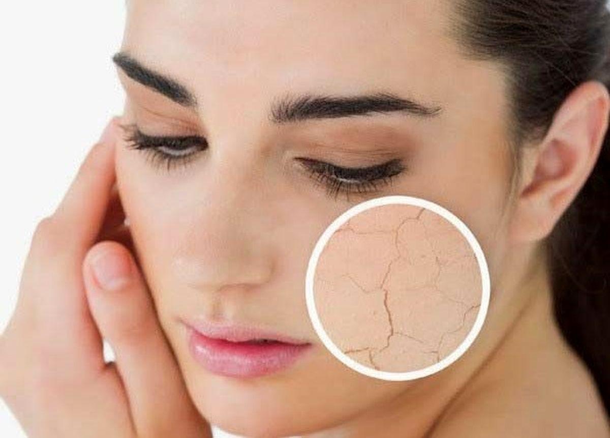 درمان خانگی خشکی پوست با راهکارهای ساده | علل و پیشگیری